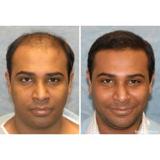 Follinox Hair spray for baldness and thining of hair
