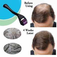 Derma Roller 0.5mm Micro Needle for Scars Wrinkles Skin Sagging Stretch Marks...
