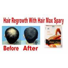 Hair Max Plus - Topical Hair Grow Spray - 60ML